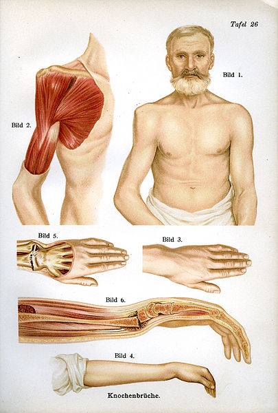 Illustrations of fractures of the arm from 'The medical counselor in word and image' by Dr. Fr Siebert published in Munich, Germany c.1910.