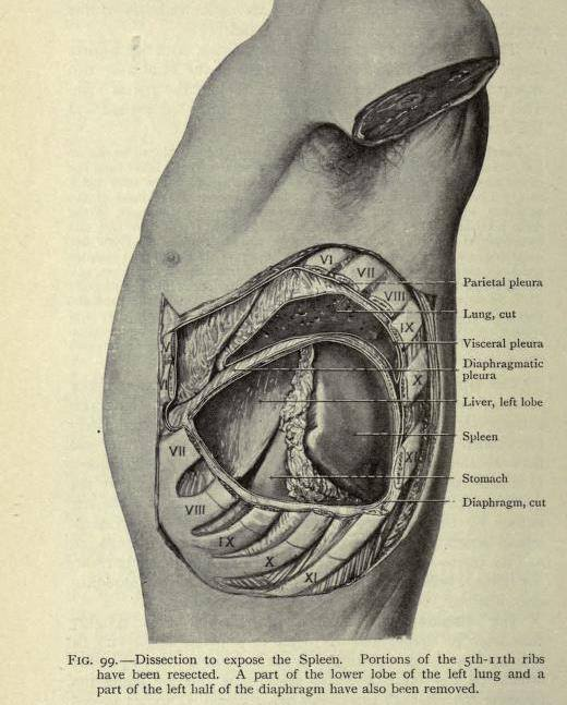 Dissection to show the location of the spleen with a great view of the position of the ribs from 'A manual of surgical anatomy' by L. Beesly & T.B. Johnston, 1916.