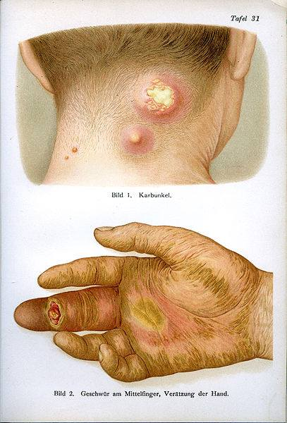 Carbuncle of the neck and an ulcer of the middle finger. From 'The medical counselor in word and image' by Dr. Fr Siebert published in Munich, Germany c.1910.