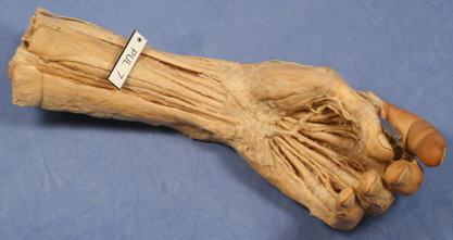 A plastinated hand, from the University of Otago featured in the New Zealand Medical Journal