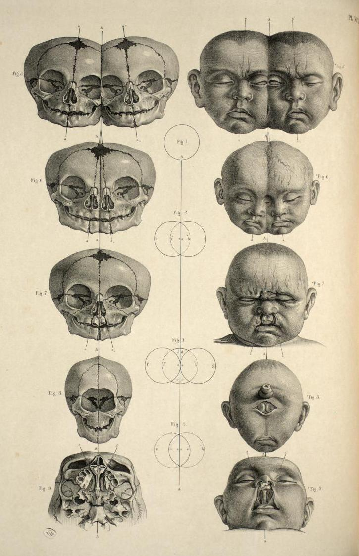 anatomy | The Irregular Anatomist
