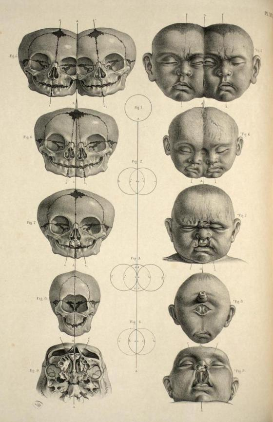 'Head and skull of malformed infants; conjoined twins, bilateral cleft lip and holoprosencephaly' from 'Surgical Anatomy' by Joseph Maclise, 1856.