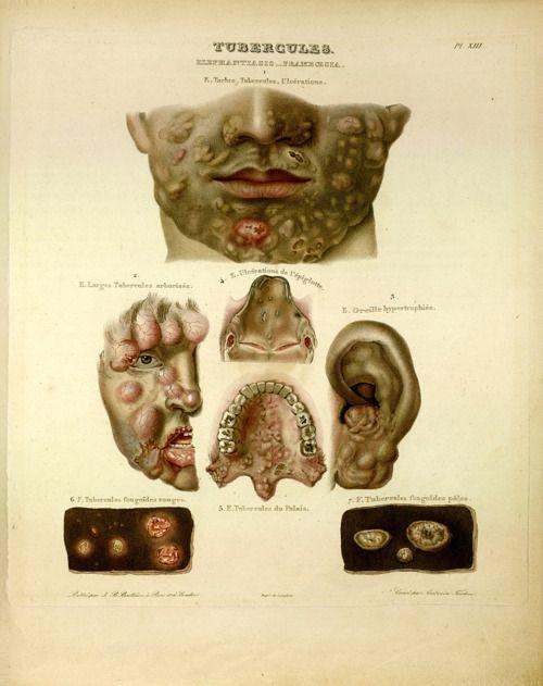 1. 'Tubercules' from 'Traité des Maladies de la Peau' by Pierre François Rayer,1835
