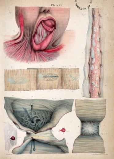 4. 'Neoplasm from a rabbit, cartilagenous deposits on the spinal cord, ulcerated Peyer's patches on the small intestine, ulcerated small intestine, intestinal stricture, contractile tissue from a healed burn.' from 'Pathological Anatomy' by Sir Robert Carswell, 1838.