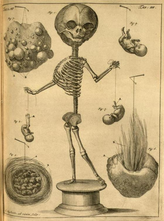 3. 'Fetal skeleton, placenta and embryo, and examples of arteriosclerosis' from Thesaurus Anatomicus by Frederik Ruysch, 1701.