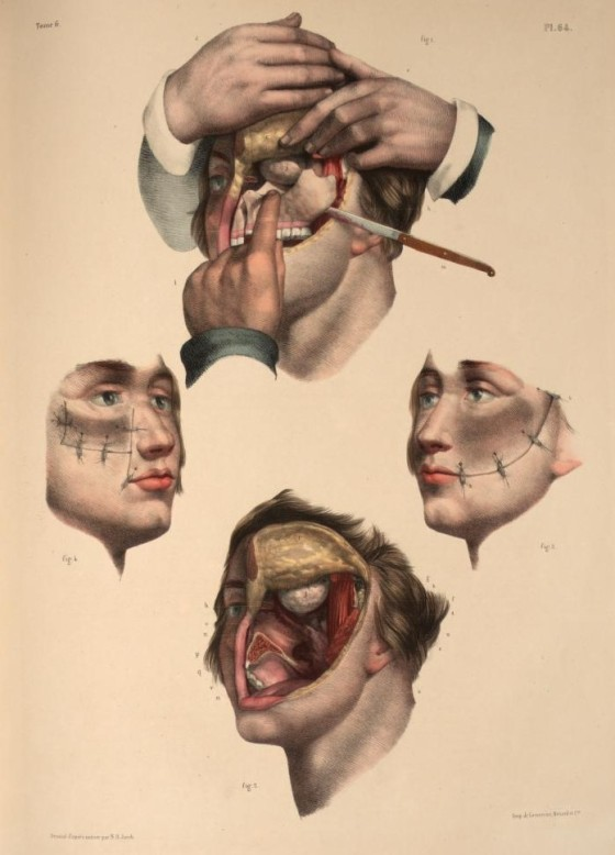 2. 'Resection of the maxilla' by Nicolas Henri Jacob from 'Traité complet de l'anatomie de l'homme' by Marc Jean Bourgery, 1831. Anaesthetic was first used in 1846...