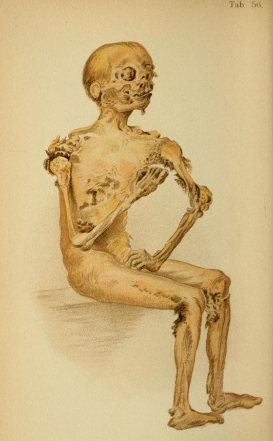 1. 'Mummified cadaver' from Atlas of Legal Medicine by Eduard von Hofmann, 1898. The body of this 50 year old man wasn't discovered until 10 years after he hanged himself in his attic.