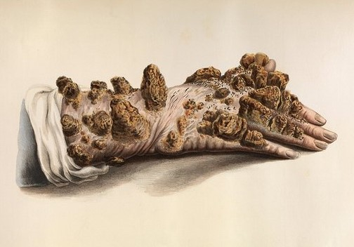 4. 'Severe tubercular leprosy (or ichthyosis) of the hand' from the Wellcome Library, London (original source unknown)